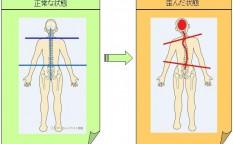 体の歪み1