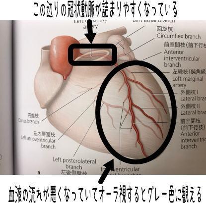 心臓の冠状動脈の詰まり