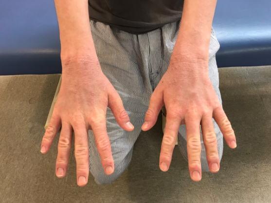 アトピー患者さん手の甲2