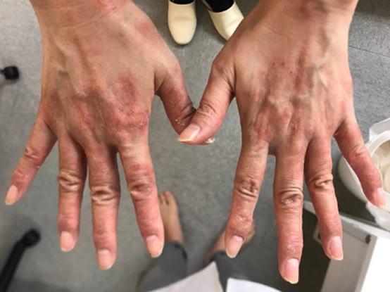 手の湿疹 Yさん1