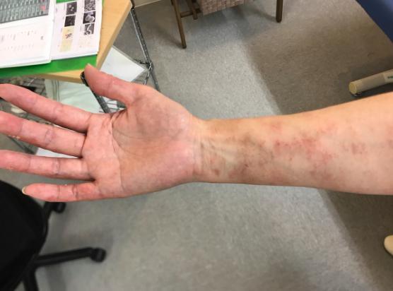 手の湿疹 Yさん2