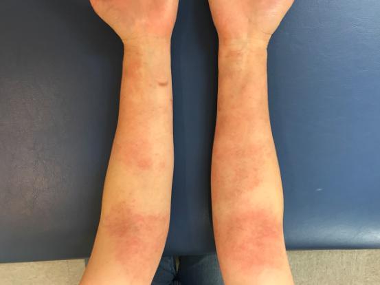 手の湿疹 Yさん3
