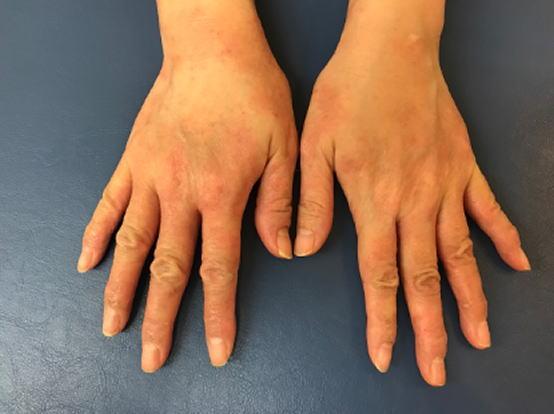 手の湿疹 Yさん4