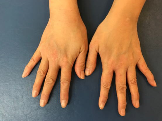 手の湿疹 Yさん6